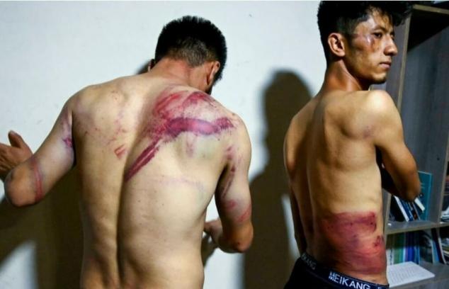 Đi đưa tin biểu tình, hai nhà báo bị Taliban đánh đập