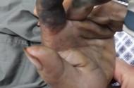 Hoại tử ngón tay do đắp thuốc nam sau khi bị rắn cắn