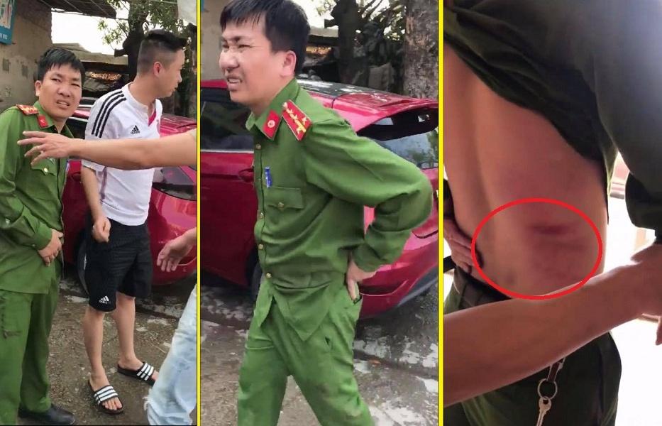 them chien si cong an bi tai xe xe tai chong lenh tong bi thuong