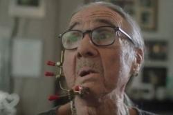 Người đàn ông bị biến dạng khuôn mặt sau 54 năm hút thuốc