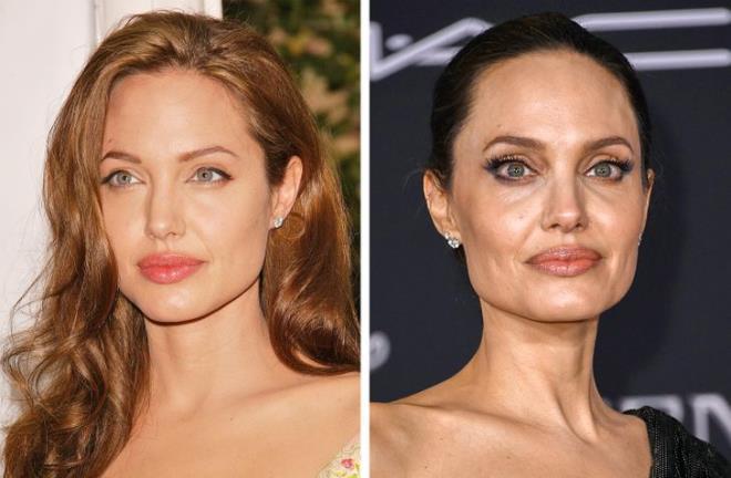 8 dấu hiệu trên mặt tiết lộ tuổi thật của phụ nữ - 3