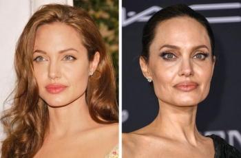 8 dấu hiệu trên mặt tiết lộ tuổi thật của phụ nữ