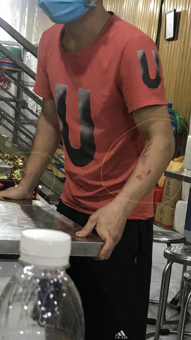 Tạm giữ khẩn cấp nữ chủ quán bánh xèo tra tấn nhân viên ở Bắc Ninh - 1