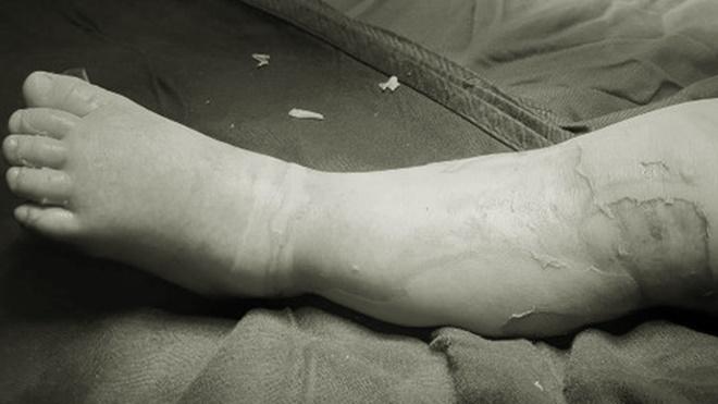 Gia đình đắp thuốc nam chữa bỏng, bé 9 tháng tuổi chết thương tâm - 1