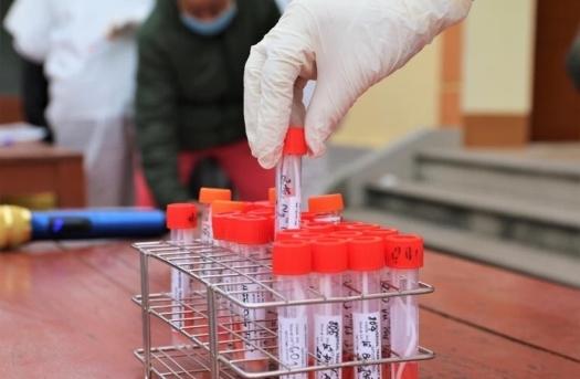 Một bác sĩ Bệnh viện Phổi Trung ương dương tính với SARS-CoV-2