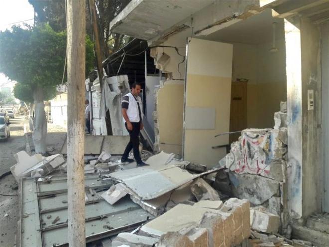 Thảm cảnh bệnh viện Gaza: Bác sỹ chết vì bom, vừa chữa thương vừa chống COVID-19 - 2