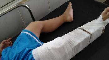Đình chỉ công tác cô giáo làm gãy chân bé 4 tuổi ở Đồng Nai