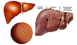 Những thắc mắc thường thấy về bệnh viêm gan B