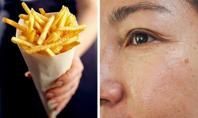 Muốn có làn da mịn màng, cần tránh xa những thực phẩm này - 2