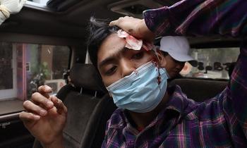Nhân chứng tố cảnh sát Myanmar bắn vào người biểu tình