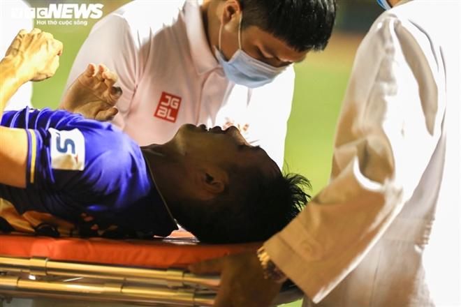Hùng Dũng gãy chân kinh hoàng: Bạo lực sân cỏ chưa buông tha bóng đá Việt Nam